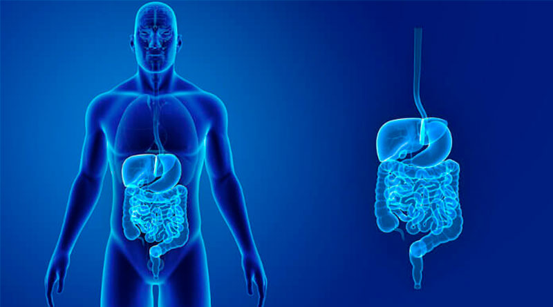 Como limpar o intestino em 7 dias